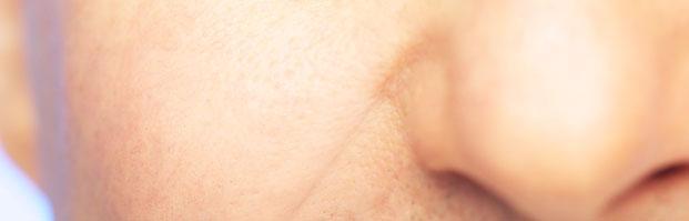 operacion tabique nasal