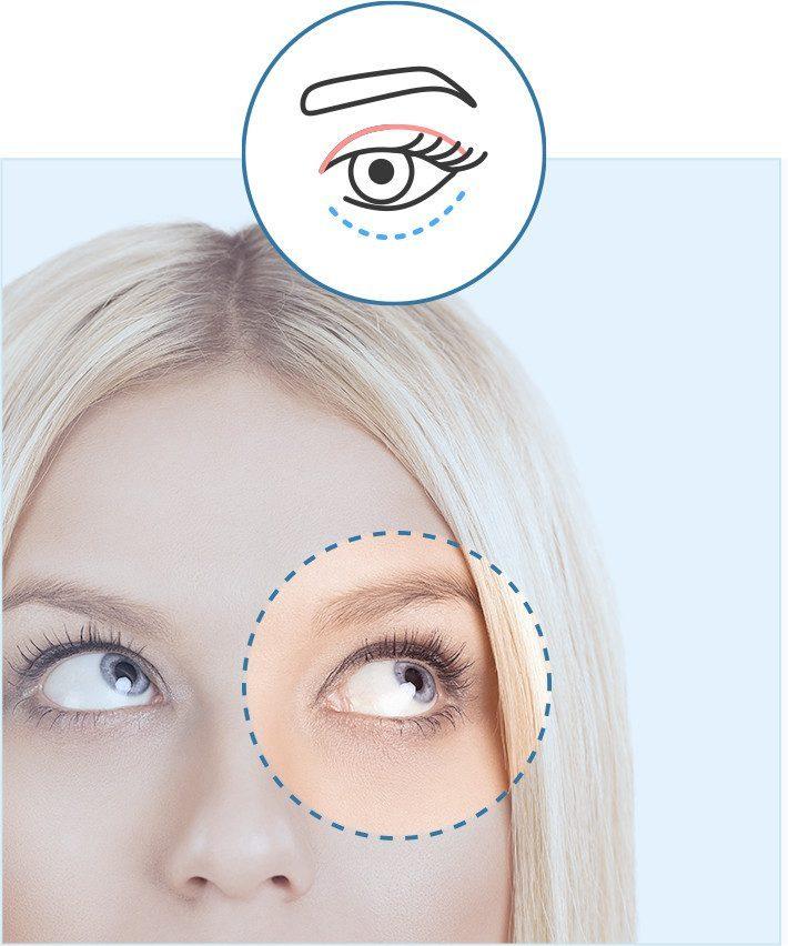 Cirugía de bolsas en los ojos