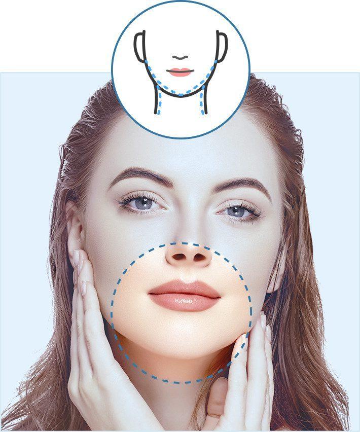 Cirugía de cuello y mentón