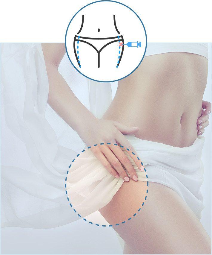 liposuccion-caderas-cirugia