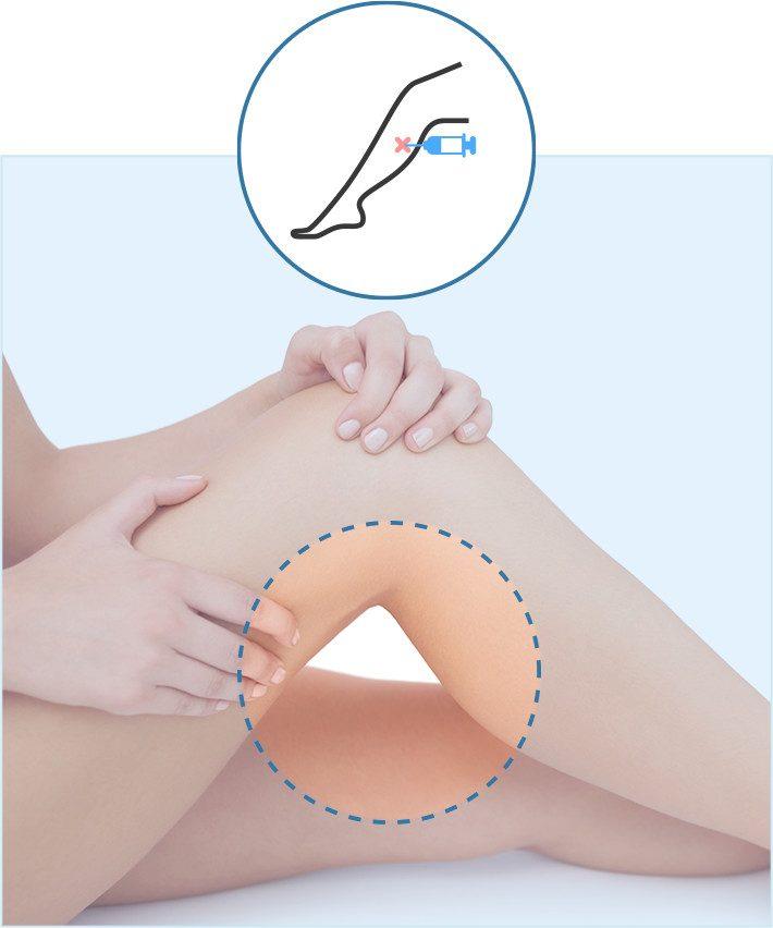 cirugia-liposuccion-piernas