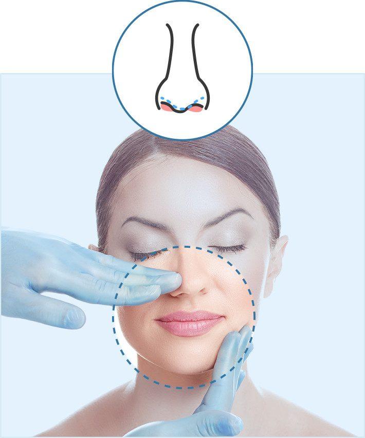 cirugia-tabique-nasal