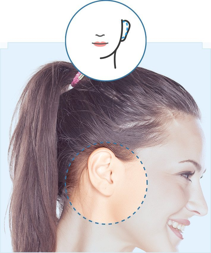 Otoplastia – Cirugía de orejas